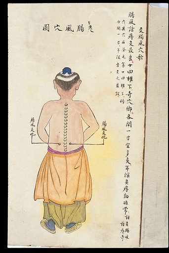 C19 Chinese MS moxibustion point chart: Intestinal wind point. Acu-moxa point chart, showing the intestinal wind (changfeng) point, from Chuanwu lingji lu (Record of Sovereign Teachings), by Zhang Youheng, a treatise on acu-moxa in two volumes. This work survives only in a manuscript draft, completed in 1869 (8th year of the Tongzhi reign period of the Qing dynasty). It is illustrated with 84 charts, finely executed in colour. Chinese Medicine. TCM. Work ID: qmwrrsc6.