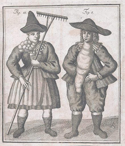 Two figures with large goitres. Work ID: pr9djqu3.