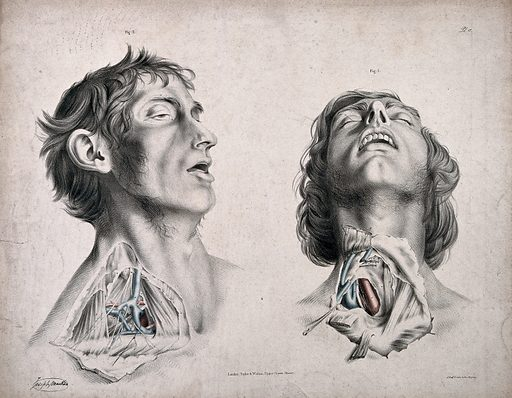 The circulatory system: two dissections of the neck of a man, with arteries, blood vessels and veins indicated in red and blue. Coloured lithograph by J Maclise, 1841/1844. Created 1841/1844. Blood – Circulation. Human anatomy. Contributors: Joseph. Maclise. Work ID: augte7tr.