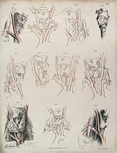 The larynx and other organs in the neck. Lithograph by J Maclise, 1841/1844. Created 1841/1844. Larynx. Human anatomy. Contributors: Joseph. Maclise. Work ID: d3f22z38.