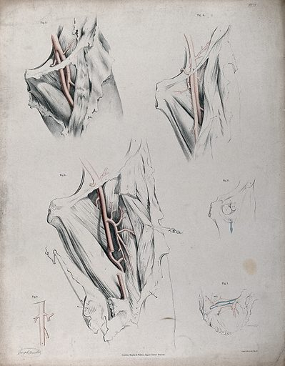 The circulatory system: dissections of the groin and thigh of a man (?), with the arteries indicated in red. Coloured lithograph by J Maclise, 1841/1844. Created 1841/1844. Blood – Circulation. Human anatomy. Contributors: Joseph. Maclise. Work ID: r8erpkth.