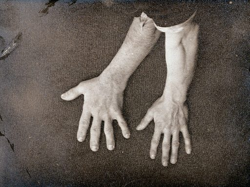 Acromegaly: a comparison between a hand enlarged due to a pituitary gland disease and an adjacent healthy hand. Photograph (by E H Cobb ?), 1870/1890. Created 1870–1890. Work ID: c5mht5fr.