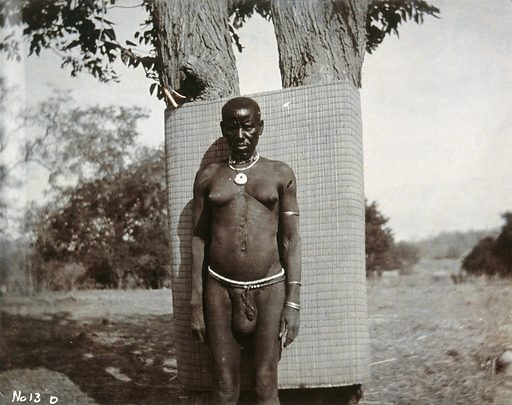 A Zambesi man, with distended scrotum and prominent breasts, standing in front of a pair of trees. Photograph, ca1900. Ethnology. Africa. Work ID: bm9bxnd7.