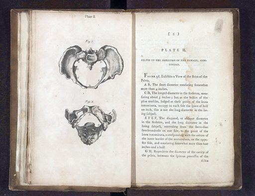 A collection of engravings…midwifery. A collection of engravings designed to facilitate the study of midwifery, explained and illustrated. Work ID: w9g2awvd.