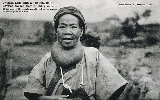 A Chinese woman suffering from a goitre. Photographic postcard, ca 1930. Created 1930?. Hypothyroidism – Patients. Work ID: ja4hjhgr.