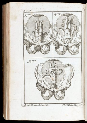 Plate 8, showing foetus with head engaged for birth. Work ID: tnfbh25z.