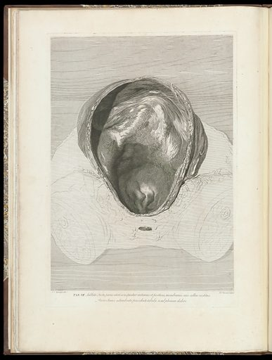 The anatomy of the human gravid uterus exhibited in figures, Plate VII. Work ID: sh2y89gh.