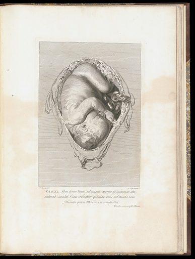 The anatomy of the human gravid uterus exhibited in figures, – Plate XX. Work ID: nbjatwce.