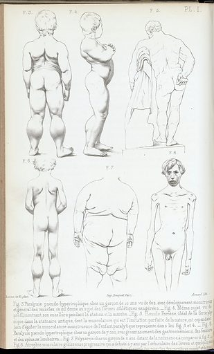Plate I – 6 illustrations of male figures. Plate I: 6 illustrations of male figures. Work ID: us9hubcv.