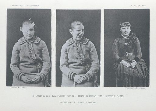 Nouvelle iconographie de la Salpêtriêre. Spasme de la face et du cou d'origine hysterique. Work ID: kqrum3js.