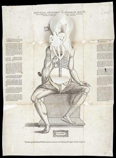 Anatomical fugitive sheets. Perutilis anatomes interiorum mulieris partium cognitio, ac earumdem situs, figura, numerus, positio, haud iniucunda cognitu. Work ID: bdz3qwu8.