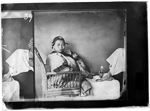 Woman with bound feet, photograph by John Thomson. Woman with bound feet, shown next to the unbound foot of another person. Contributors: John Thomson. Work ID: bqxdq8w9.