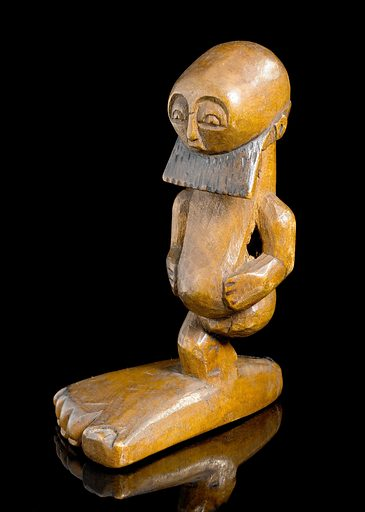 Carved wooden statue, Democratic Republic of Congo, 1880–191. The wooden figure shows a man with one over-sized foot. It is likely that this represents the condition elephantiasis. Elephantiasis is a rare disorder of the lymphatic system in the human body. Inflammation of the lymphatic vessels causes extreme enlargement of the affected area. This item is thought to have been made by the Basonge tribe of the Democratic Republic of Congo. Elephantiatis. Contributors: Science Museum, London. Work ID: ky9jxv8k.