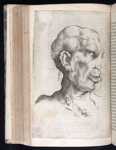Head illustrating syptoms of syphilis. Engraving, 1632. Head of a man illustrating the syptoms of syphilis. Engraving, 1632. Deformity. Sexually transmitted disease. Male. Work ID: jmfpwb3h.