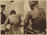 America in World War I: Lieutenant Colonel William Mook, an army skin expert, treating a soldier burned by mustard …