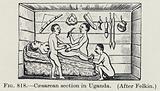 Caesarean section in Uganda
