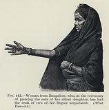 Woman from Bangalore, who, at the ceremony of piercing the ears of her eldest daughter, has had the ends of two of her fingers amputated