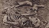 Skeletal remains of a dead soldier, World War I