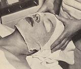 Woman having a beauty treament using medicated gauze