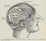 Drawing to illustrate cranio-cerebral topography, Macalister