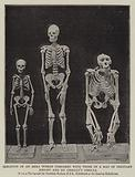 Skeleton of an Akka Woman compared with those of a Man of Ordinary Height and Du Chaillu's Gorilla