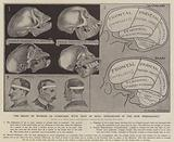 The brain of woman as compared with that of man: researches in the new phrenology