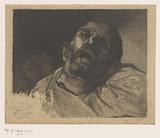 Head of a headless man