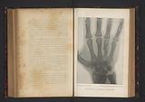 X-ray of a hand with broken metacarpal bone