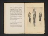 X-ray of three hare legs