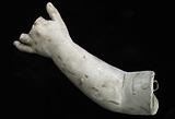 Cast of an Unidentified Child's Left Hand and Forearm (three middlefingers missing)