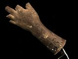 Cast of an Unidentified Child's Left Hand and Forearm (all fingers missing)