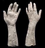 Cast of an Unidentified Woman's Left Hand and Forearm