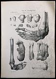 Examples of bone deformities: skeletal detail, numbered for key