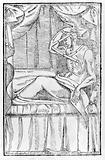 Plastic surgery on the lower lip- 16th century