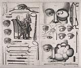 A double sheet showing various ophthalmology instruments, eye growths, a cataract operation and other eye defects