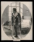 Royal Hospital Haslar: a soldier on crutches with an amputated leg, wounded after the Battle of the Alma