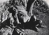 An inhabitant of Buruma Island, Uganda, suffering from sleeping sickness