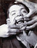 Friern Hospital, London: a young boy with rotten teeth