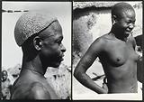 Africa: a woman with scarification on her chest and arms, and with plugs in her ear-lobes and lower lip