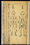 Chinese woodcuts: Locations for applying ointments