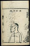 Chinese woodcut: Pathology of 'pouchy jaw' throat abscess