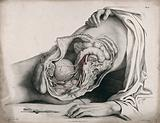 The circulatory system: dissection of the abdomen and pelvic region of a man, side view, showing the intestines and …