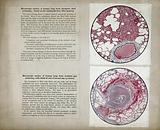 World War I: lung tissue damaged by mustard gas poisoning: microscopic section
