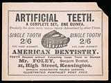 Artificial teeth: a complete set, one guinea, 1896?